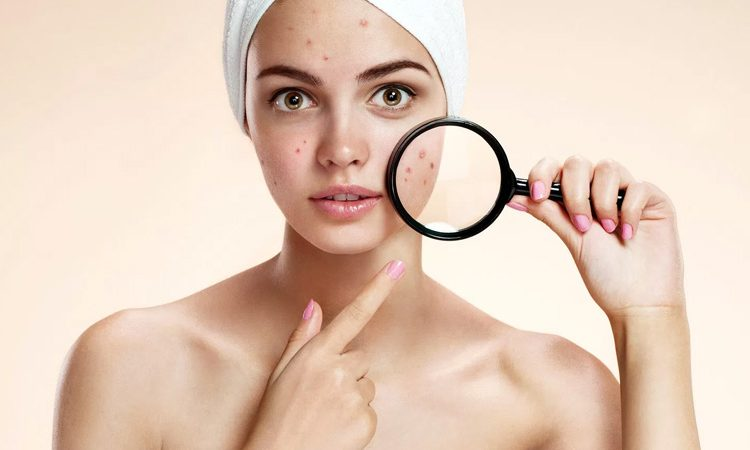 11 Best Acne Treatment 2021 Reviews [According to Dermatologists]