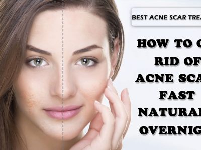 How To Get Rid Of Acne Scars : According To Dermatologists