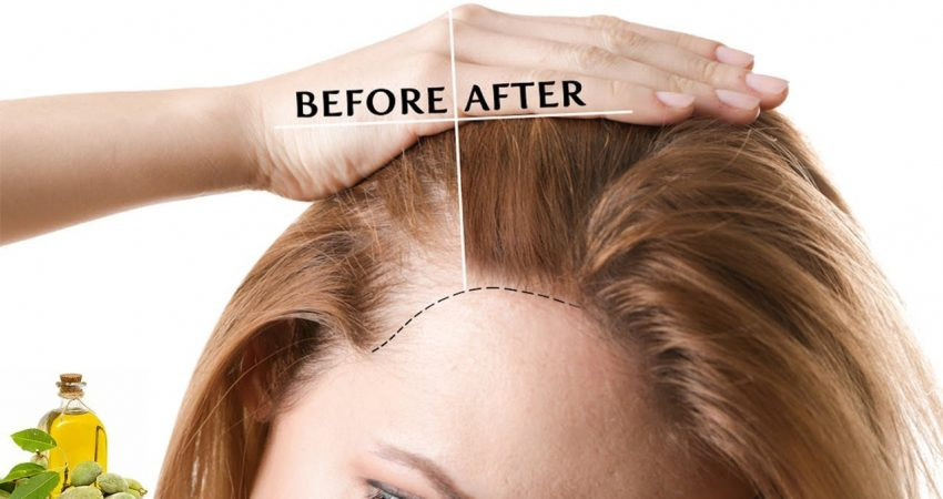 How To Thicken Hair Naturally 5 Ways  Proven Home Remedies