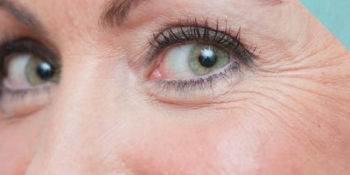Best Eye Cream for Wrinkles and Crow's Feet
