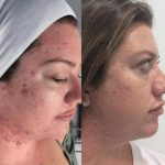 Best Microdermabrasion Machine At Home Reviews 5
